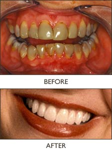 This smile was esthetically enhanced, using 18 porcelain veneers