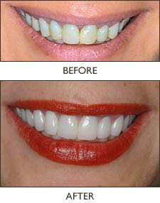 dramatically transform one's smile and facial profile