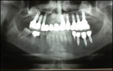 x-ray of 8 upper and 3 lower dental implants