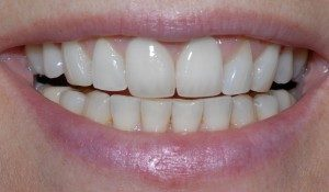 Cosmetic Dentistry What are dental implants
