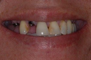Teeth Examples Dental Implants Center