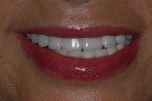 Teeth Examples Dental Implants Center