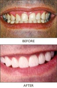 how do dental implants work