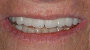 full mouth Cosmetic Dentistry Dental Implant Centers
