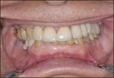 Cosmetic Dentistry Dental Implant Centers
