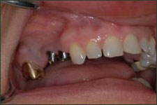 Examples of dental implants on teeth
