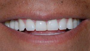Examples of dental implants on teeth