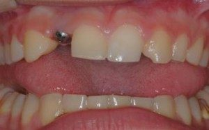 one implant Cosmetic Dentistry Dental Implant Centers