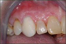 one tooth Cosmetic Dentistry Dental Implant Centers
