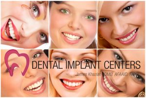 same day dental implants