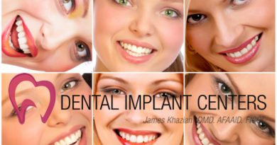 Dental implant treatment considerations
