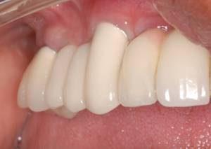 san diego dental implant centers