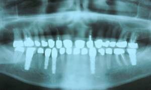 xray finished dental implants