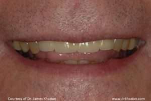 Upper Front Teeth Replacement