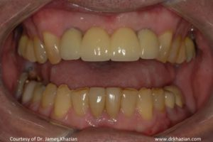 Upper Front Teeth Replacement5
