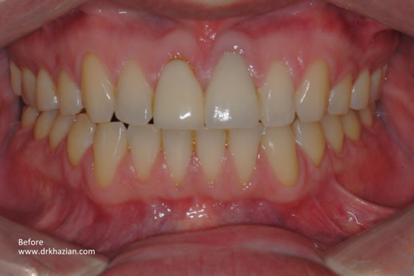 Tooth Dental Implants