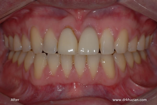 Upper front missing tooth implants
