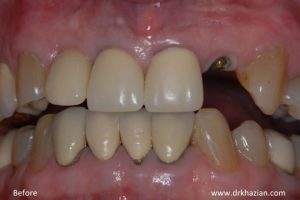 single tooth implant1