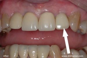 single tooth implant4