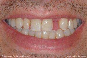 Tooth Dental Implants