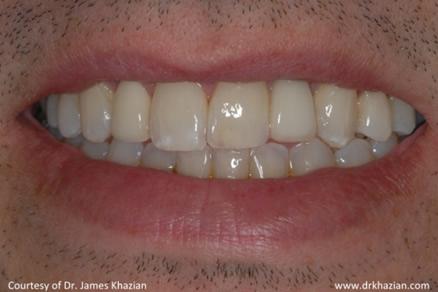 teeth implant6