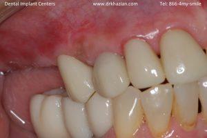 missing back teeth dental implants1
