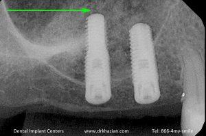 missing back teeth dental implants3