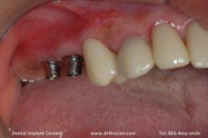 missing back teeth dental implants4