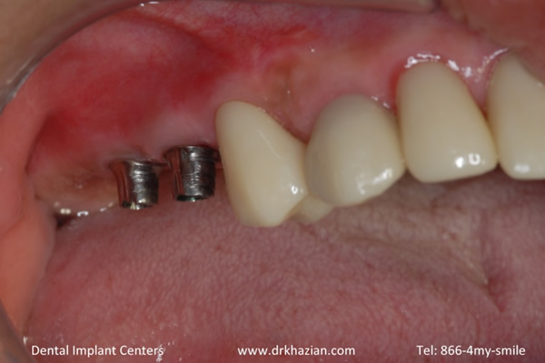 missing back teeth dental implants4