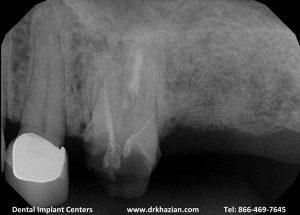 replace molar teeth1