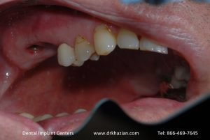 replace molar teeth2