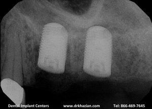 replace molar teeth3