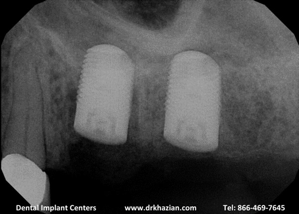 replace molar teeth3