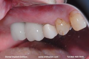 replace molar teeth7