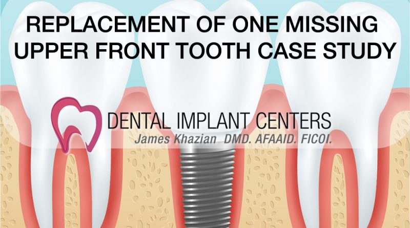 replace missing tooth implants