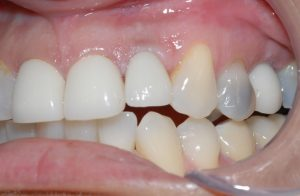 replace missing tooth5